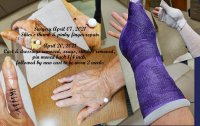 Old cast off new purple cast.jpg